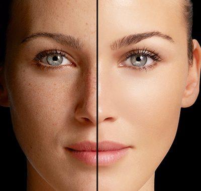¿Tienes manchas o arrugas? Descubre cómo cuidar tu piel