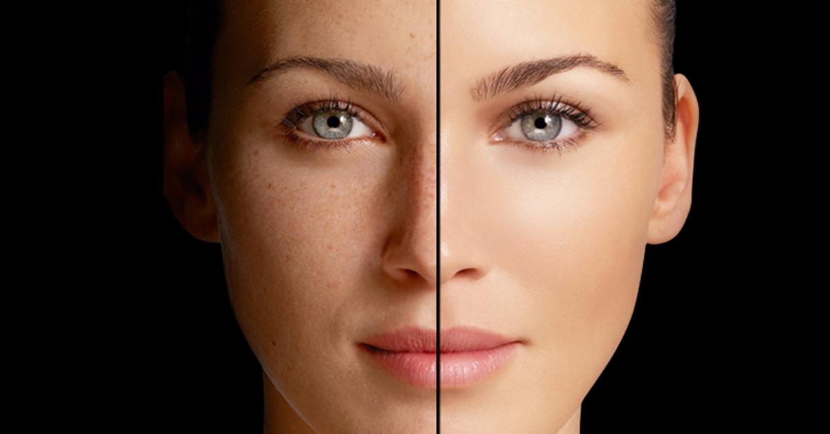 ¿Cómo evitar las manchas en la piel?